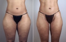 Liposuction Patient 40