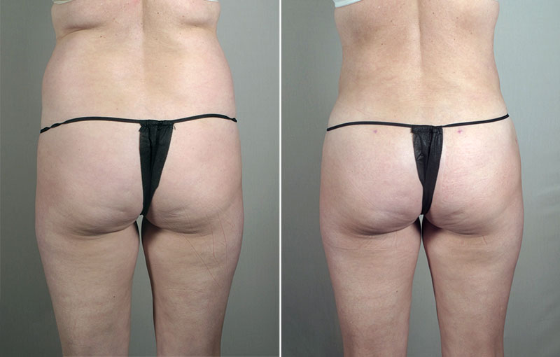 New Jersey Fat Liposuction