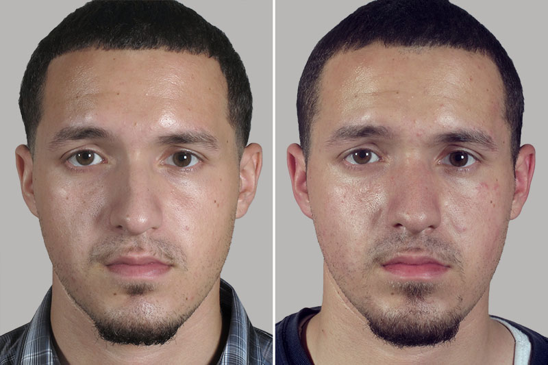 Rhinoplasty Before And After Male Rhinoplast...