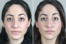 Rhinoplasty Patient 39