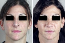 Rhinoplasty Patient 44