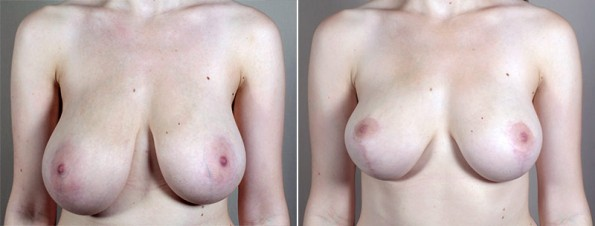 New Jersey Breast Asymmetry
