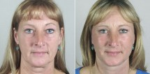 Face Lift Patient 27