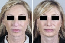 Neck Lift Patient 8