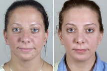 Rhinoplasty Patient 50
