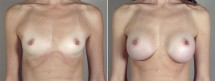 Breast Enlargement (Augmentation) Patient 69