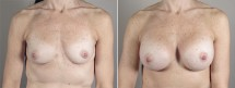 Breast Enlargement (Augmentation) Patient 77