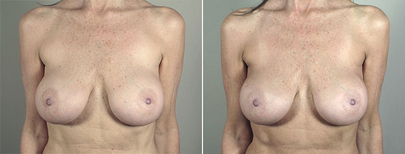 New Jersey Breast Implant Revision