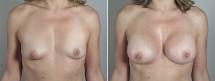 Breast Enlargement (Augmentation) Patient 84