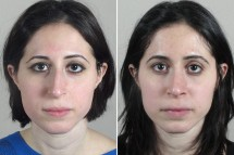 Rhinoplasty Patient 51