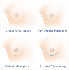 Options for Breast Lift Surgery New Jersey