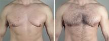 Gynecomastia Reduction Patient 48