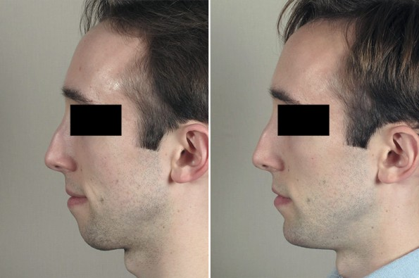 Chin Implant Patient 18