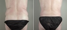 Male Abdominoplasty Patient 9