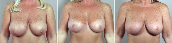 breast-lift-mmo5-2014-triple-a