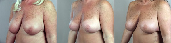 breast-lift-mmo5-2014-triple-b