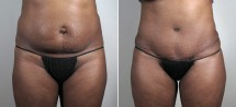 Parker Tummy Tuck Patient 49