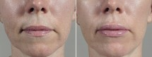 Lip Enhancement Patient 12