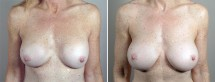 Removal & Replacement of Implants Patient 32