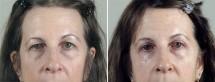 Browlift & Lower Eyelid Lift Patient 16