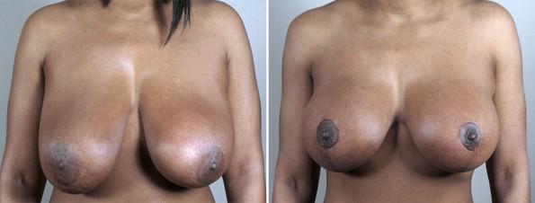 Breast Lift with Implants Patient 43