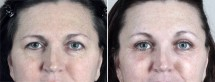 Browlift & Upper Eyelid Lift Patient 22