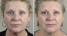 Parker Rejuvenation Lift Patient 4