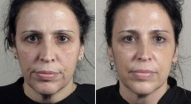 Parker Rejuvenation Lift Patient 9