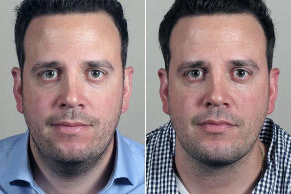 Chin Implant & Neck Liposuction 1
