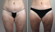 Thigh & Buttock Lifting Surgery 17