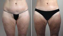 Thigh & Buttock Lifting Surgery 17