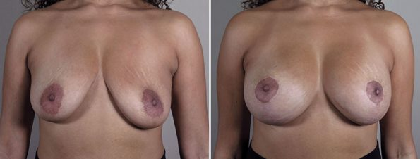 Breast Implant Revision 54