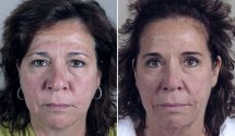 Facelift & Neck lift Patient 37