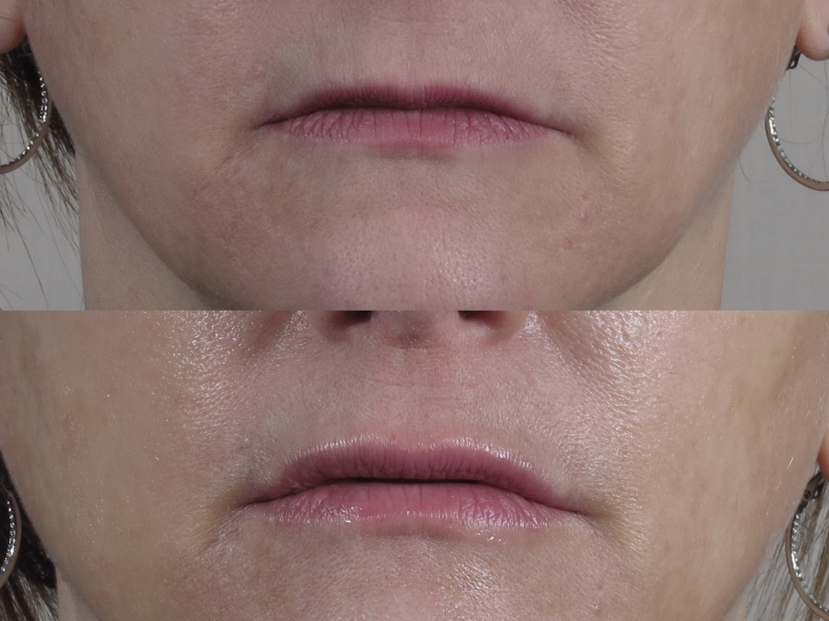 lip microneedling boosts collagen to plump lips without fillers