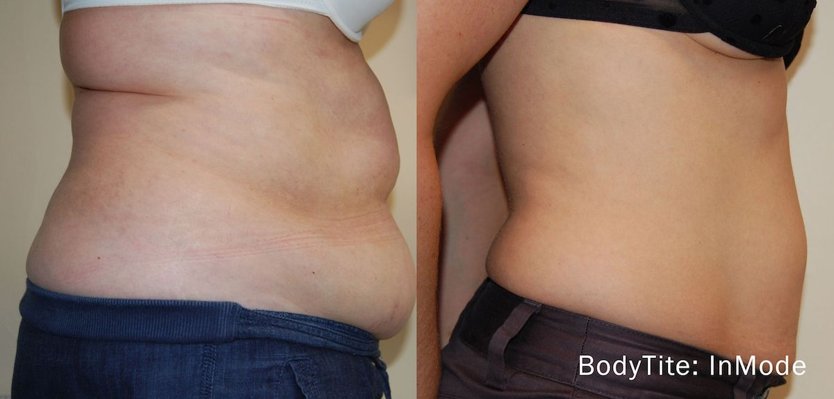 before and after bodytite nonsurgical tummy tightening